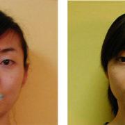 eye 180x180 - 顔が長い、伸びてきた原因