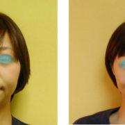 kubomi 180x180 - 頬がげっそりこける原因