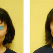 kusumi 1 180x180 - 目のくぼみ、眼瞼下垂の原因