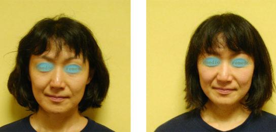 kusumi 1 544x262 - 肌がくすむ、毛穴が多い原因、顔セルライト