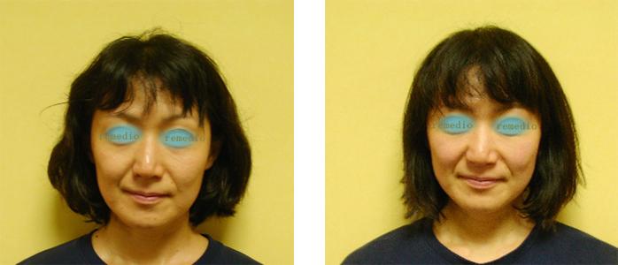 kusumi 1 - 目のくぼみ、眼瞼下垂の原因