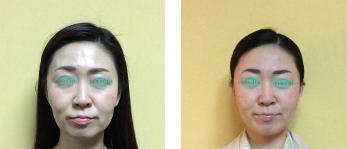 kyousei - 歯列矯正で顔が変わってしまった原因