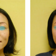 rinkaku2 180x180 - 酷い顔の歪みの原因