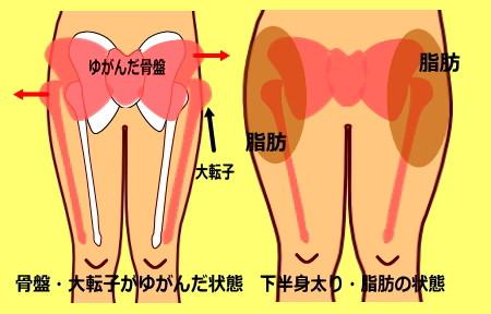 syouzyou - 骨盤美脚コース
