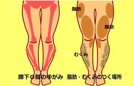 syouzyou 0000 hizashitaokyaku - 骨盤美脚コース