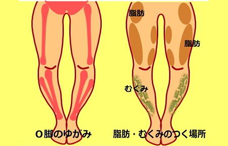 syouzyou 0002 okyaku - 骨盤美脚コース