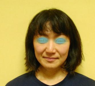 .jpg - 肌がくすむ、毛穴が多い原因、顔セルライト