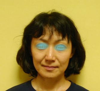 1 - 肌がくすむ、毛穴が多い原因、顔セルライト
