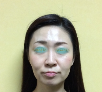 .jpg - 歯列矯正で顔が変わってしまった原因