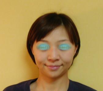 目の下の弛み