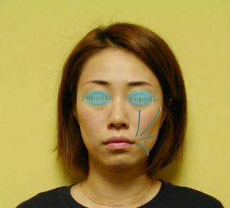.jpg - 頬がげっそりこける原因