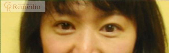 image - 目のくぼみ、眼瞼下垂の原因