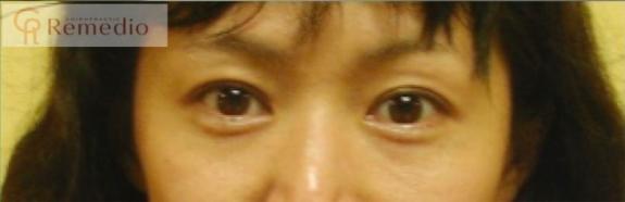 image1 - 目のくぼみ、眼瞼下垂の原因