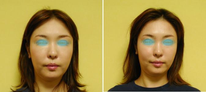 .jpg - 顔が長い、伸びてきた原因