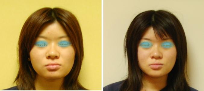 .jpg - 顔の横幅が広い、大きくなる原因