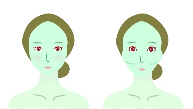 頬骨矯正の特徴