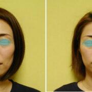 180x180 - 頬骨が出てる、高い原因