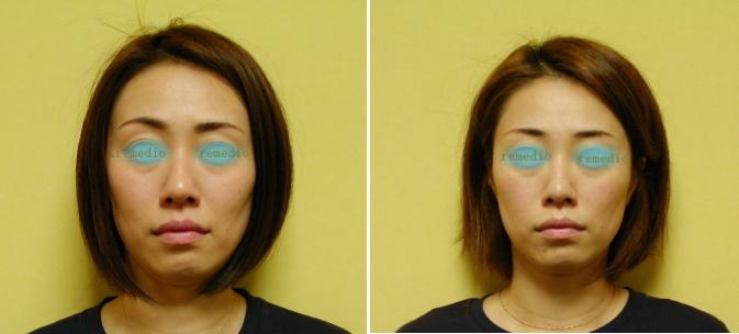 .jpg - 頬骨矯正の特徴